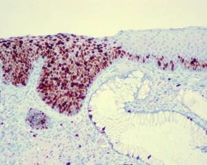 04a - Das CIS, ( Carcinoma in situ )